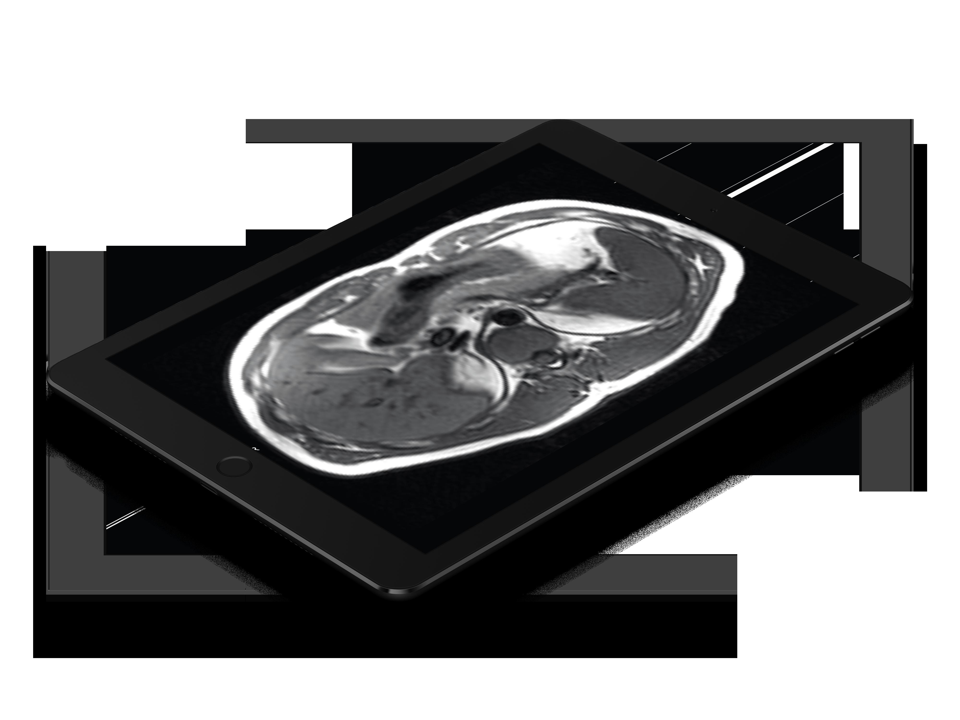 teleradiology-pacs-tablet